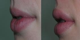 rellenos faciales, dermal fillers