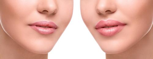 relleno labios Valencia