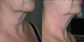 Thermage en cuello, thermage applied to neck